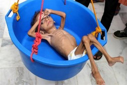 Starving Yemenis Eat Leaves to Survive: Report